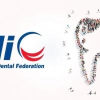 Pytasz co FDI robi dla Ciebie? A czego potrzebujesz?